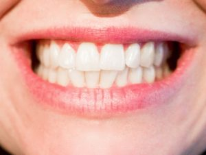 Przebarwienia zębów – ranking sprawców
